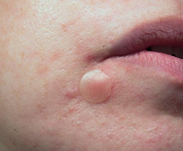 Acne Patch Pembasmi Bakteri Penyebab Jerawat